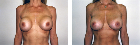 breast implants revision plastic surgeon nyc, nyc breast implants revision plstic surgeon