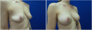 IP-breast-lift-mastopexy-revision-before-after-1-4