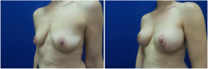 IP-breast-lift-mastopexy-revision-before-after-1-5