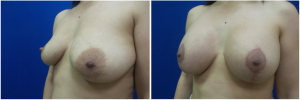KN-breast-lift-mastopexy-revision-before-after-1-3