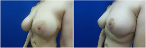 NT-breast-lift-mastopexy-revision-before-after-1-2