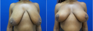 breast-lift-1-1
