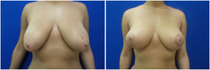 breast-lift-2-1