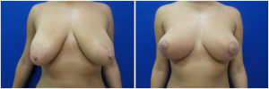 breast-lift-mastopexy-before-after-4-1