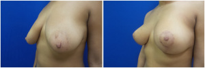 breast-lift-mastopexy-before-after-4-5