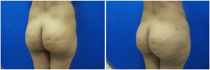 fat-transfer-before-after-photo-15-2