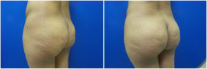 fat-transfer-before-after-photo-15-4
