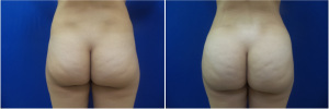 fat-transfer-before-after-photo-18-1
