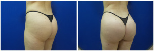 liposuction-fat-transfer-before-after-photo-14-3-copy