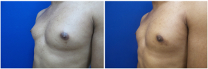 DH-gynecomastia-surgery-nyc-before-after-photo-1-3
