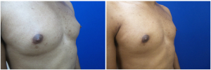 DH-gynecomastia-surgery-nyc-before-after-photo-1-4