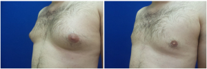 DS-gynecomastia-surgery-nyc-before-after-photo-1-4