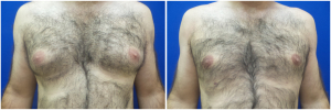 Gynecomastia-Before-After-NYC-1-2