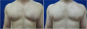 Gynecomastia-Before-After-NYC-4-2