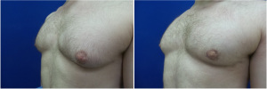Gynecomastia-Before-After-NYC-4-3