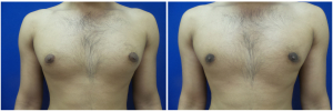 MR-gynecomastia-surgery-nyc-before-after-photo-1-1