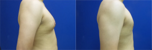 gynecomastia-before-after-photo-11-5