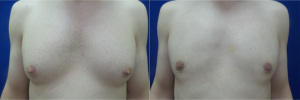 gynecomastia-before-after-photo-12-1