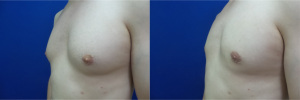 gynecomastia-before-after-photo-12-4