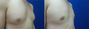 gynecomastia-before-after-photo-12-5