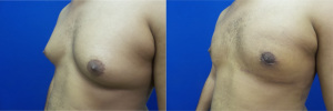 gynecomastia-before-after-photo-13-3