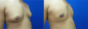 gynecomastia-before-after-photo-13-5