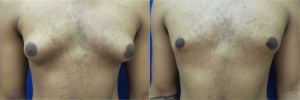 gynecomastia-before-after-photo-14-1