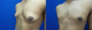 gynecomastia-before-after-photo-14-2