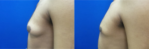 gynecomastia-before-after-photo-14-3