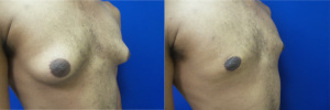 gynecomastia-before-after-photo-14-4