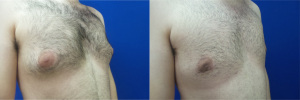 gynecomastia-before-after-photo-15-3