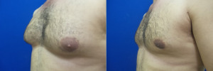 gynecomastia-before-after-photo-16-2