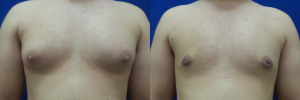 gynecomastia-before-after-photo-17-1