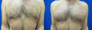 gynecomastia-before-after-photo-18-1