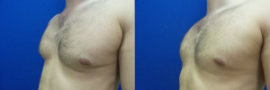 gynecomastia-before-after-photo-19-2