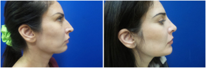 rhinoplasty-before-after-photo-12-3