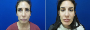 rhinoplasty-before-after-photo-12-4