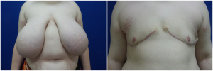 top-surgery-female-to-male-2-1