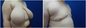 top-surgery-female-to-male-2-2