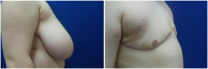 top-surgery-female-to-male-2-3