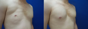 top-surgery-female-to-male-3-2