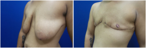 top-surgery-female-to-male-4-2