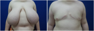 top-surgery-female-to-male-6-1