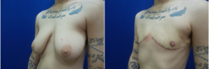 top-surgery-female-to-male1-1