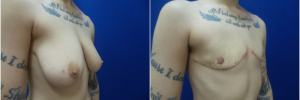 top-surgery-female-to-male1-3