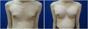top-surgery-male-to-female-before-after-1-1
