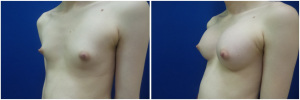 top-surgery-male-to-female-before-after-1-3