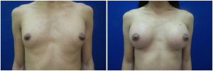 top-surgery-male-to-female-before-after-2-2