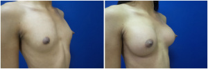 top-surgery-male-to-female-before-after-2-4