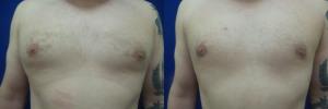 JA-gynecomastia-surgery-nyc-before-after-photo-1-1